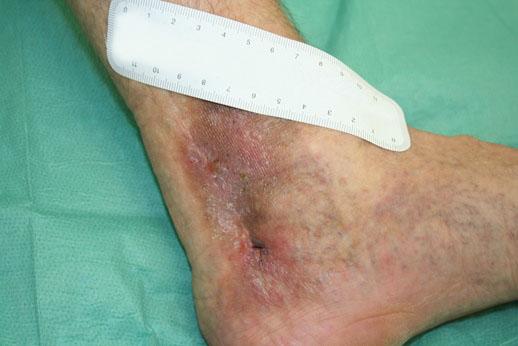 schlecht heilende wunden am bein