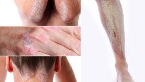 psoriasis-collage_800x500