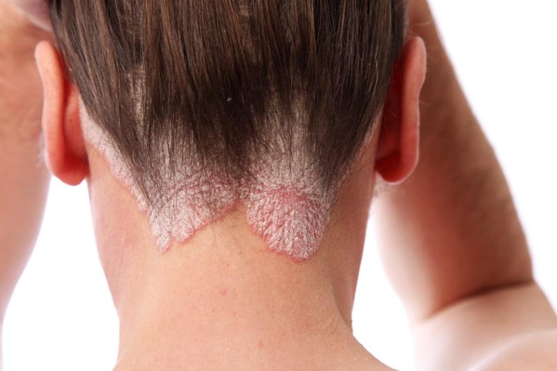 Schuppenpflechte-Psoriasis am Haaransatz und auf der kopfhaut
