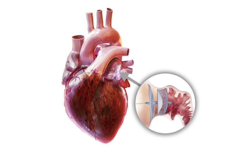 VHF Herz