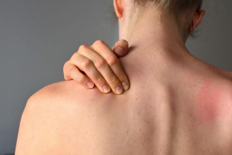 Junge Frau leidet an Nackenschmerzen