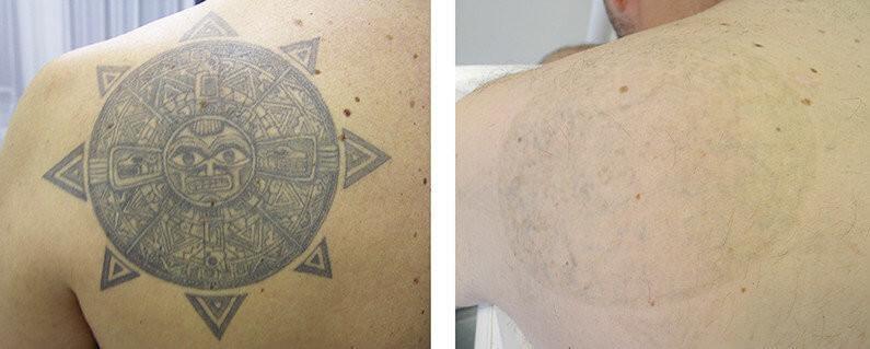 Pallas Tattoo Kombi