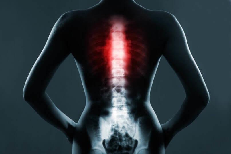 Osteoporose neu 2