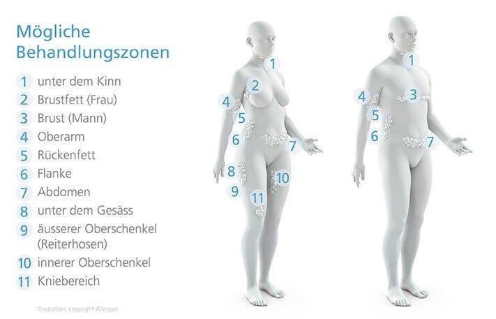 Smoothline Behandlungszonen