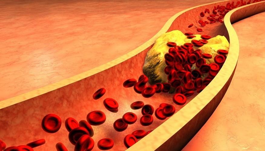 Cholesterin Bild AdobeStock Urheber Von ralwel
